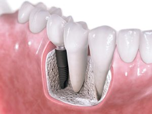 Dental implant marketing